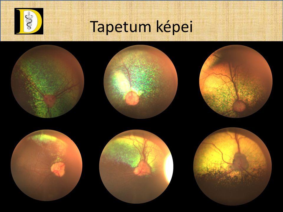 Látóidegfő • A szemgolyó hátsó pólusától ventrolat.