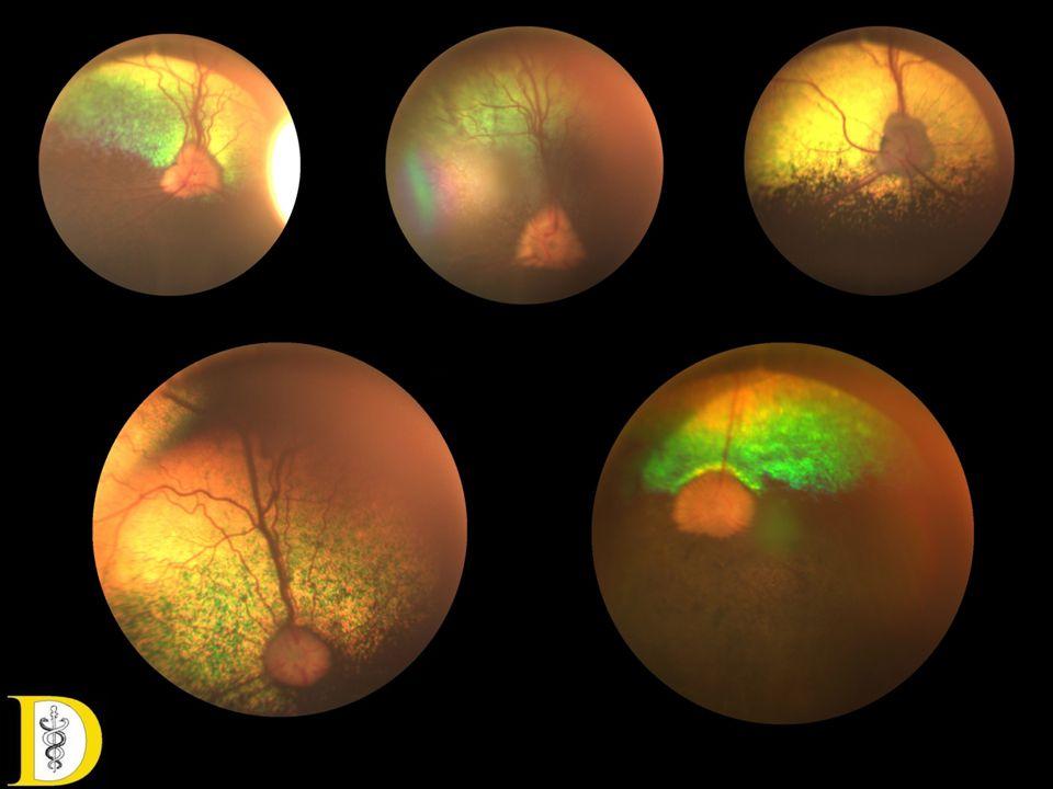 Retina saját erei • Kutya: holoangiotikus, az erek egyenlő távolságban térnek a papillától a retina perifériája felé, egyenes lefutásúak, kevés elágazással.