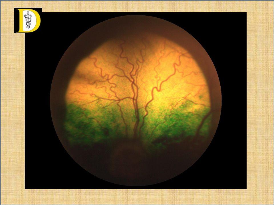 Westie – CEA/retina dysplasia