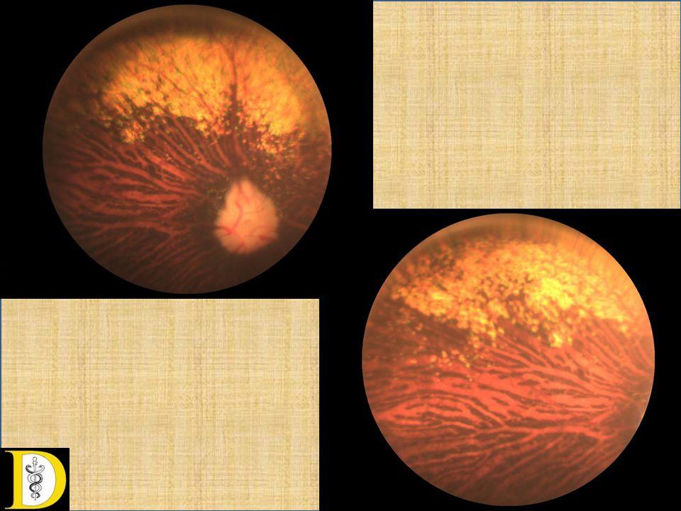 Retina heg • Korábbi sérülést, bevérzést, gyulladást követően, retinopátiákban.