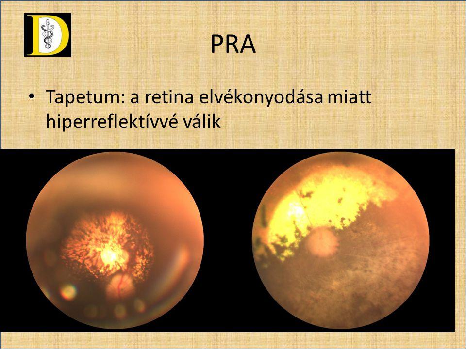 • Retina erei: elvékonyodnak, elsőként az artériák, a retina széli részeit fokozottan figyelni