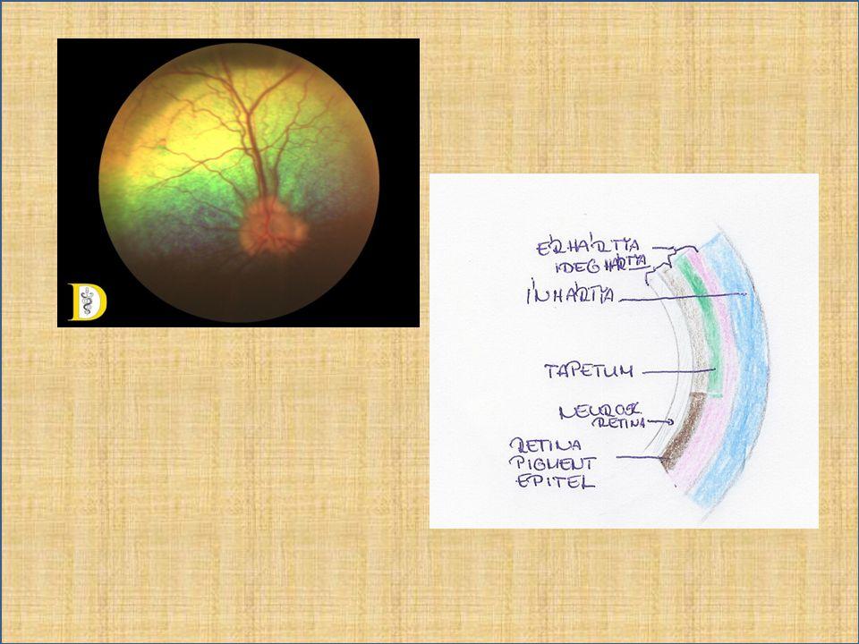 Normál szemfenéki variációk • Albinó, szubalbinó szem – Melanin hiánya – retina pigment epithel, érhártya áttetszővé válik.