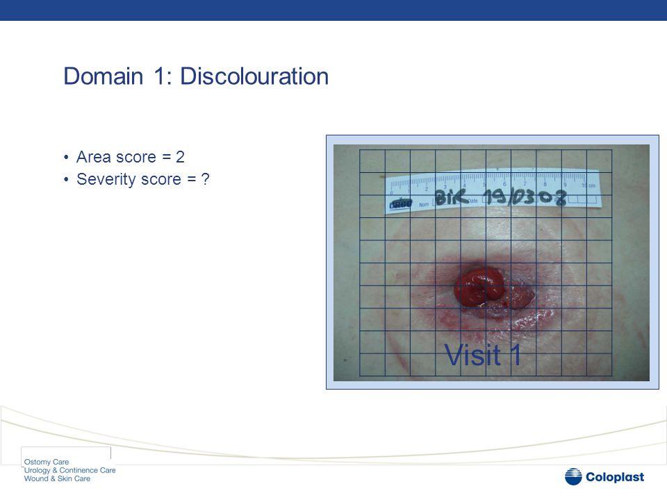 Domain 1: Discolouration •Area score = 2 •Severity score = 1 Visit 1