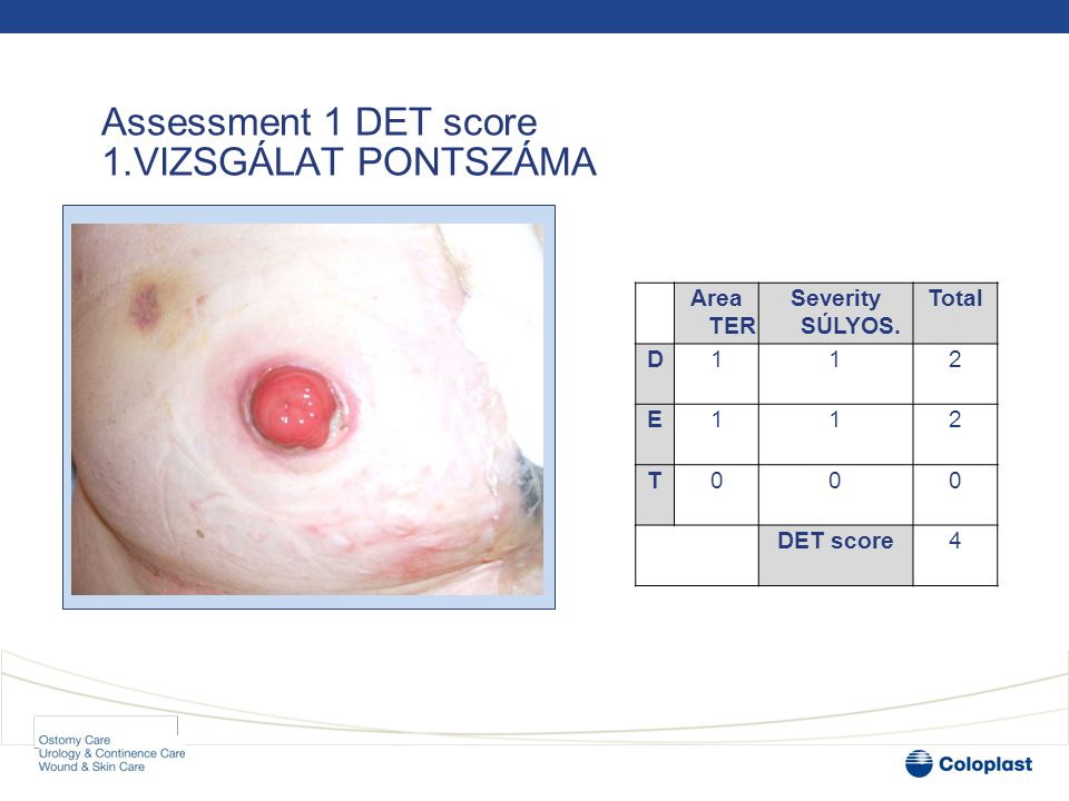 Visit 2 •At the return visit 13 days later, the DET score was 2 •13 NAP MÚLVA PONTSZÁMA DET 2 •The appliance was adhering; the patient was not experiencing peristomal skin discomfort and she was much happier •JÓL TAPAD AZ ESZKÖZ •By using the DET score, whichever nurse saw the patient on subsequent visits had a clear and uniform way to evaluate the peristomal skin and decide if it was improving or deteriorating, providing seamless patient care •BÁRKI LÁTTA EL, AZONOS MÓDON ÉRTÉKELTE A JAVULÁST