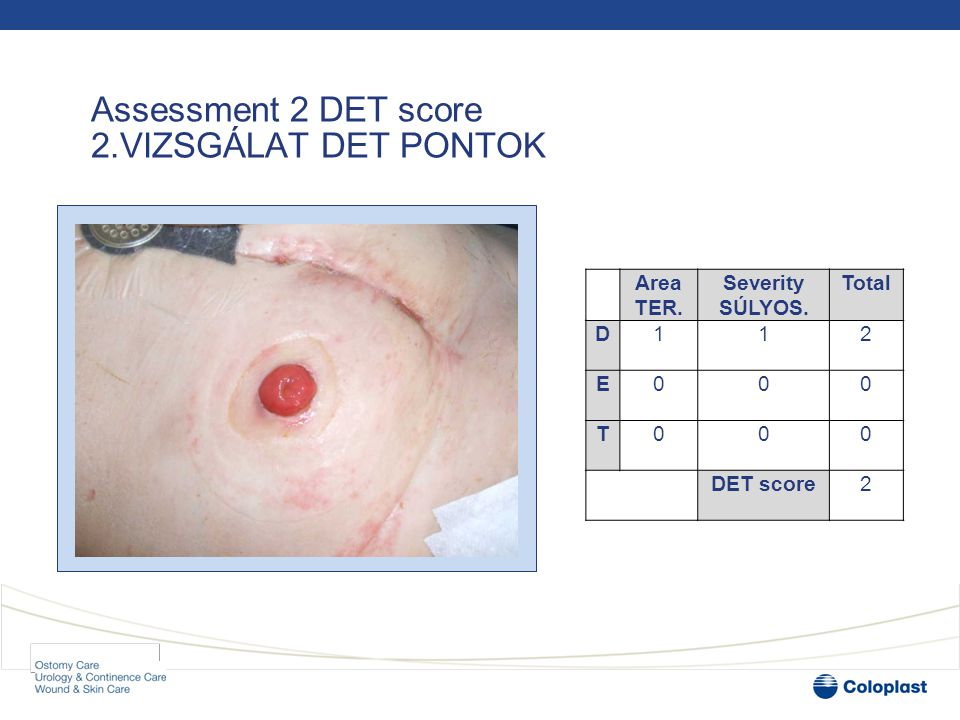 Patient and case history ESET TANULMÁNY The patient: Mr M •69-year-old man with Crohn's disease 69 ÉVES FFI CHRON B.