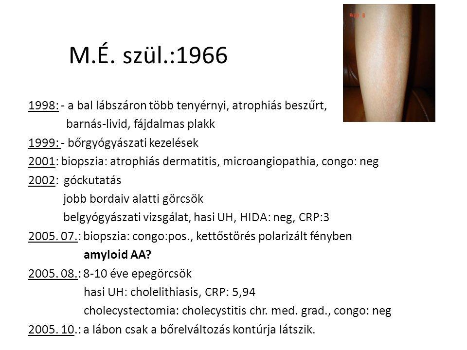 M.A.-né, szül.:1938 1999. 11.: bőrpír az emlő felett.