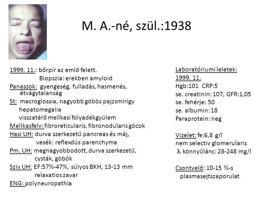 Vesebiopszia Fénymikroszkópia: glomerulusok: homogén sejtszegény eosinophyl anyag felhalmozódása a GBM-ben és a mesangiumban tubulusok: sorvadtak interstitium: heges erek:egyenletes lumenszűkület