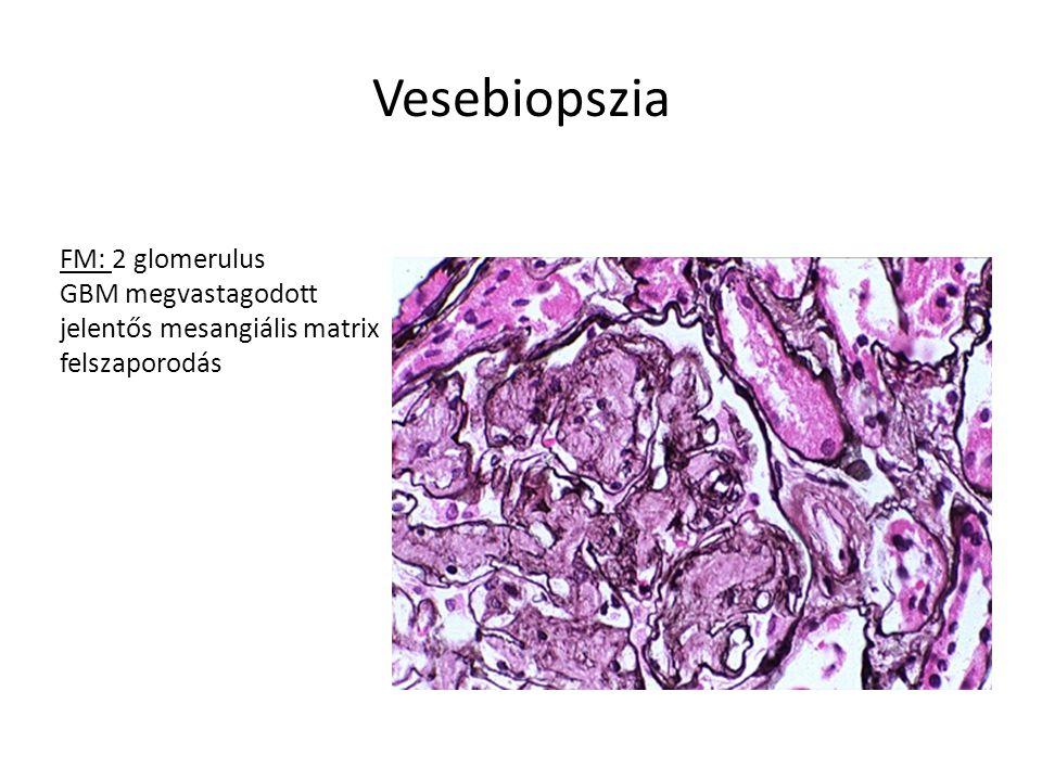 Szövettan Elektronmikroszkópia: Diffusan fibrilláris anyag depositiója a GBM-ben, mesangiumban