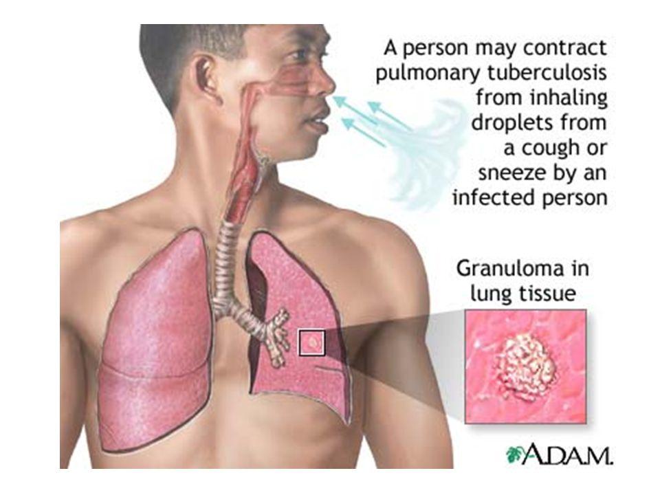 A tuberculosis Az első találkozás: 5-6 hét lappangás után: primaer complexus bárhol a tüdőben A primaer tbc fakultatív tünetei: hőemelkedés, köhögés, éjszakai izzadás, étvágytalanság Erythema nodosum l.