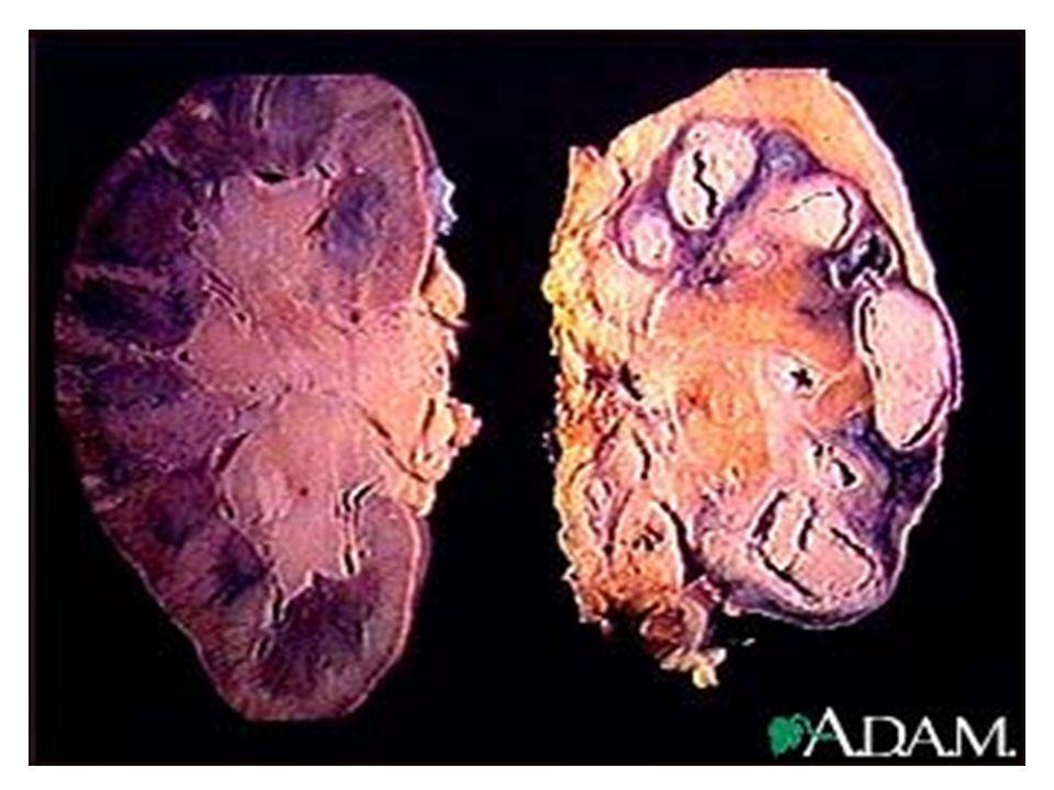 A tbc diagnosztikája Anamnezis: beteg a családban vagy korábbi betegség.