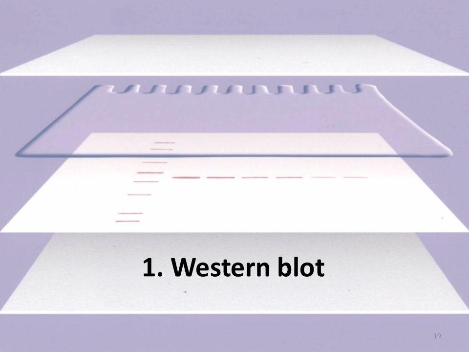 Western blot molekuláris biológiai módszer biomolekulák komplexében lévő fehérje kimutatására Lépései: 1.gélelektroforézis 2.blottolás (transzfer) 3.blokkolás 4.megjelölés 5.detektálás 20