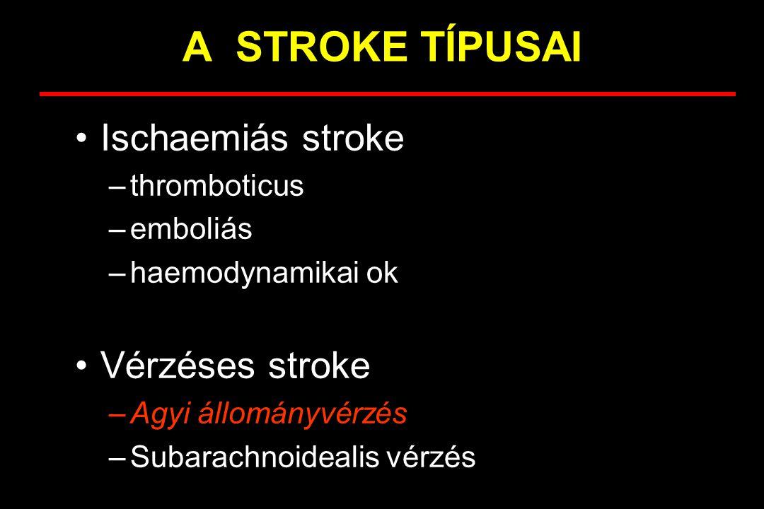 Agyi állományvérzések Általában vérnyomáskiugrásal társul Percek-órák alatt kialakuló tünetek Nagy vérzés esetén gyorsan kialakuló tudatzavar Fejfájás, hányás gyakori