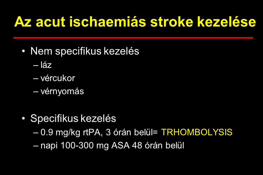 Bizonyítottan hatékony specifikus kezelés akut stroke-ban Ischaemiás stroke –stroke osztályok –szöveti plazminogén aktivátor (rtPA thrombolysis) –acetilszalicilsav (aspirin) –secunder preventio elkezdése Állományvérzés –nincs specifikus kezelés –a műtéti indikáció kérdése sem tisztázott