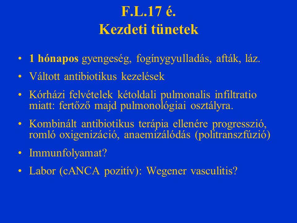 Szövettan  bronchoscopia  súlyos pulmonalis haemorrhagia (biopsia elmarad)  Légzési elégtelenség, ARDS, b.o.ptx  gépi lélegeztetés J.o.hemiparesis Akut veseelégtelenség Wegener vasculitis dg.