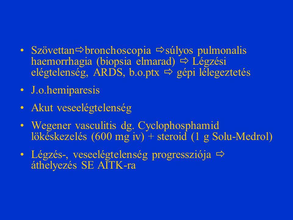Gravis pulmonalis haemorrhagia, ARDS: gépi lélegeztetés invazív paraméterekkel, politranszfúzió + haemostriptikumok Veseelégtelenség (creat clearence=7 ml/min)  haemodyalisis Neurológiai status: rapid romlás, j.o.
