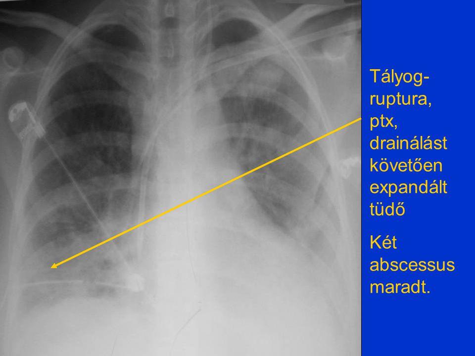 Ismételt tályog- ruptura, drainálást követően expandált tüdő Egy abscessus maradt.