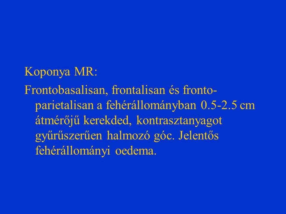 Vírus serologia: Enterovírus: neg.HSV 1-2: neg. CMV: neg.