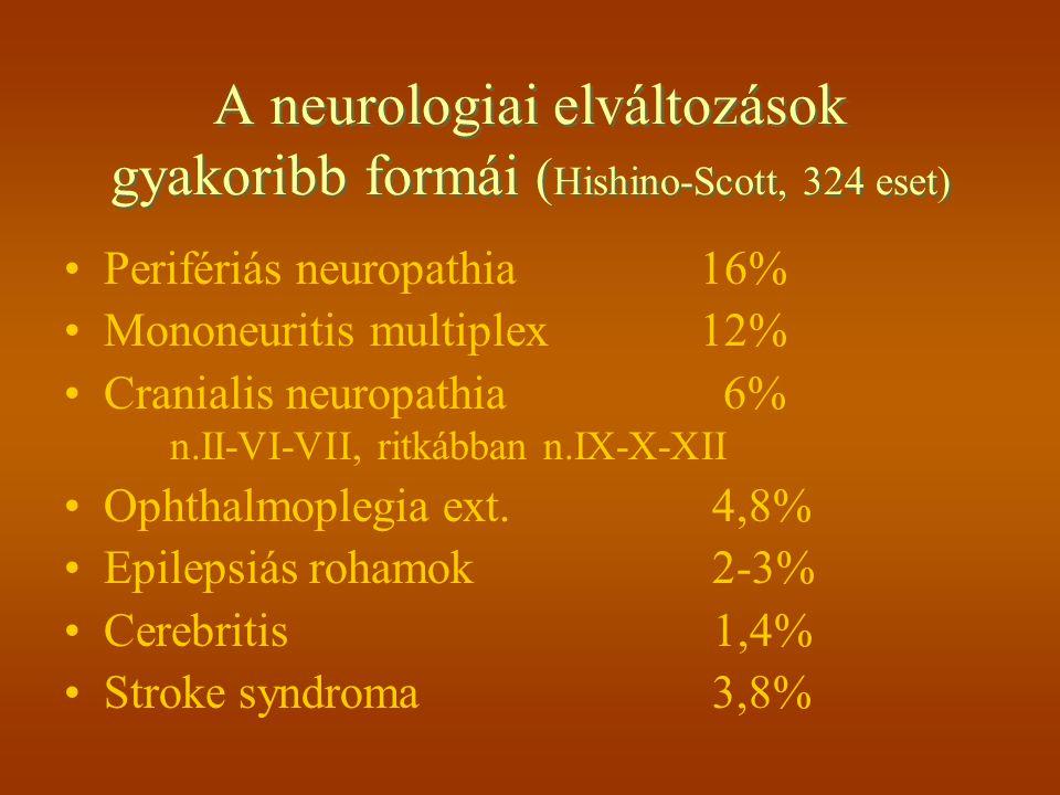 Egyéb ritkább neurol.