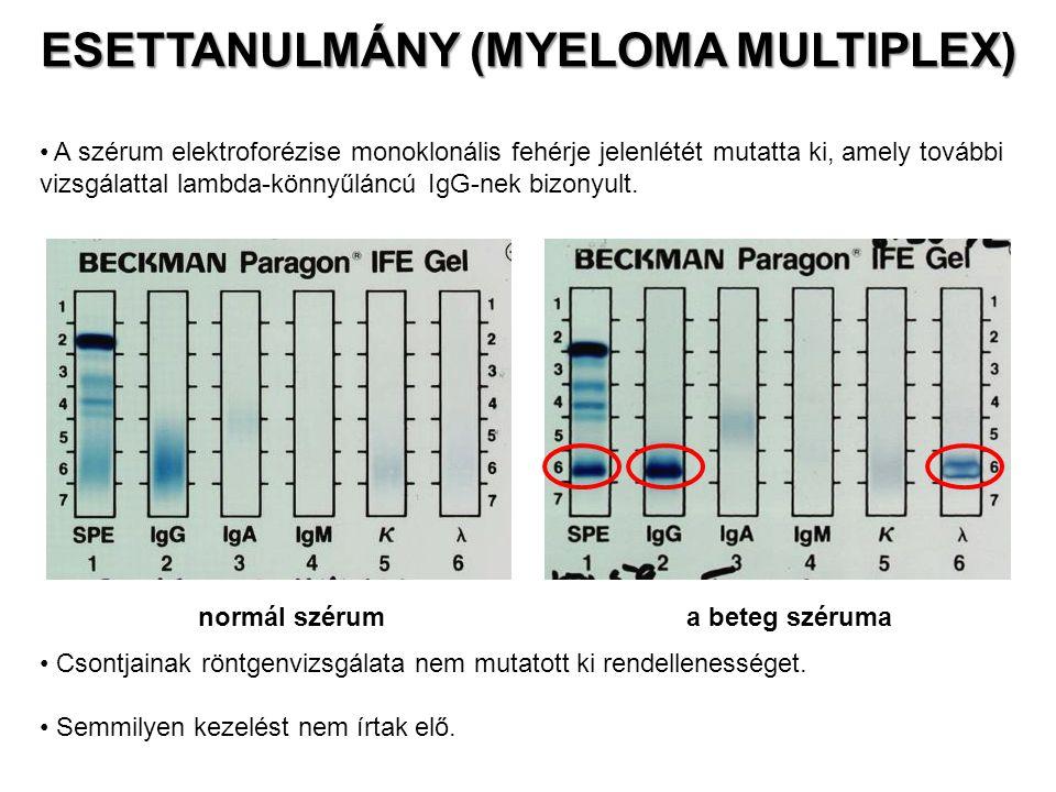 1991 áprilisában a szérum IgG-szintje 4520 mg / dl volt, 1992 januárjában pedig már 5100 mg / dl.