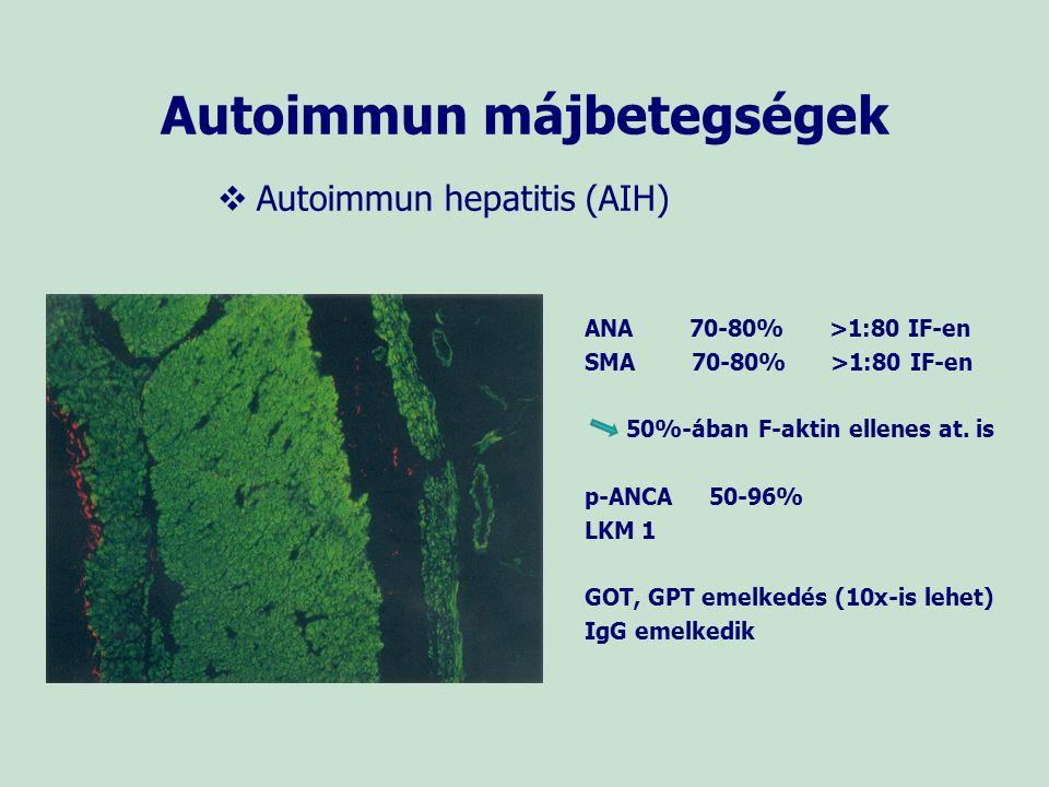 Autoimmun májbetegségek Primer biliáris cirrhozis (PBC) AMA/AMA M2 95%>1:40 IF-en Kimutatása specifikus a betegségre ANA 30-50% >1:40 IF-en PBC-re specifikus nukleáris antitestek: nukleáris pore membrán glikoprotein- gp210 elleni at.
