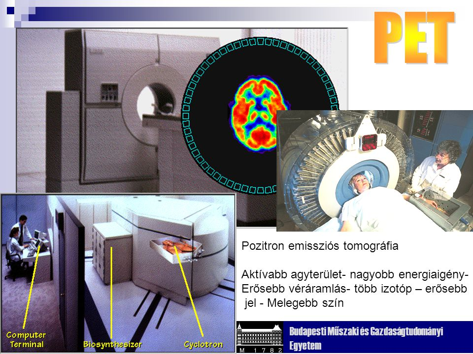 Kognitív Tudományi Tanszék Budapesti Műszaki és Gazdaságtudományi Egyetem Pozitron emissziós tomográfia Aktívabb agyterület- nagyobb energiaigény- Erősebb véráramlás- több izotóp – erősebb jel - Melegebb szín