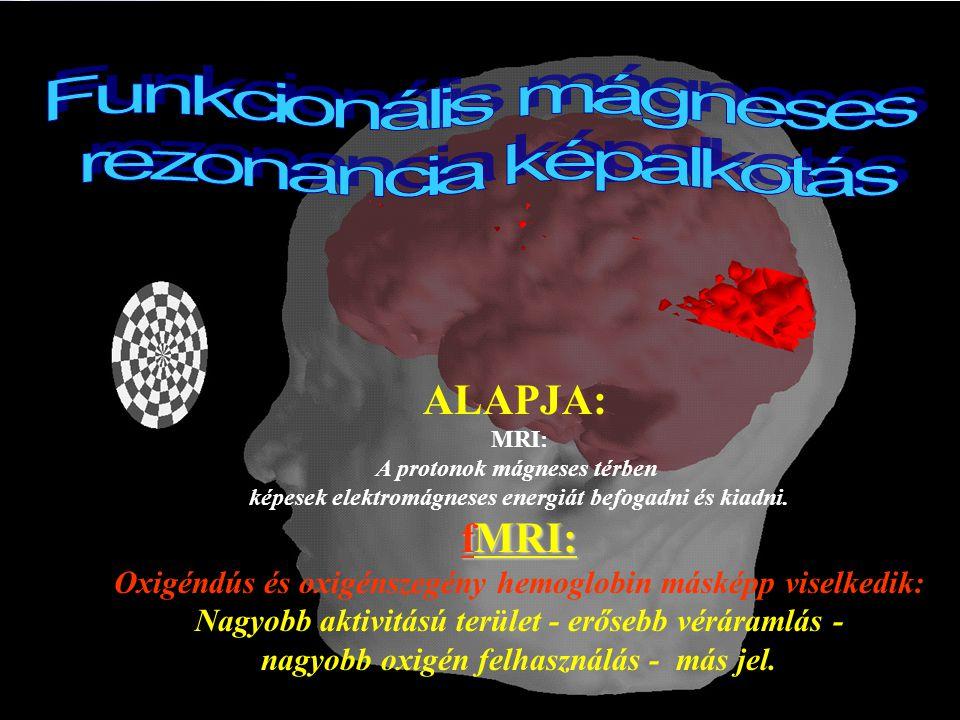 Kognitív Tudományi Tanszék Budapesti Műszaki és Gazdaságtudományi Egyetem ALAPJA: MRI: A protonok mágneses térben képesek elektromágneses energiát befogadni és kiadni.