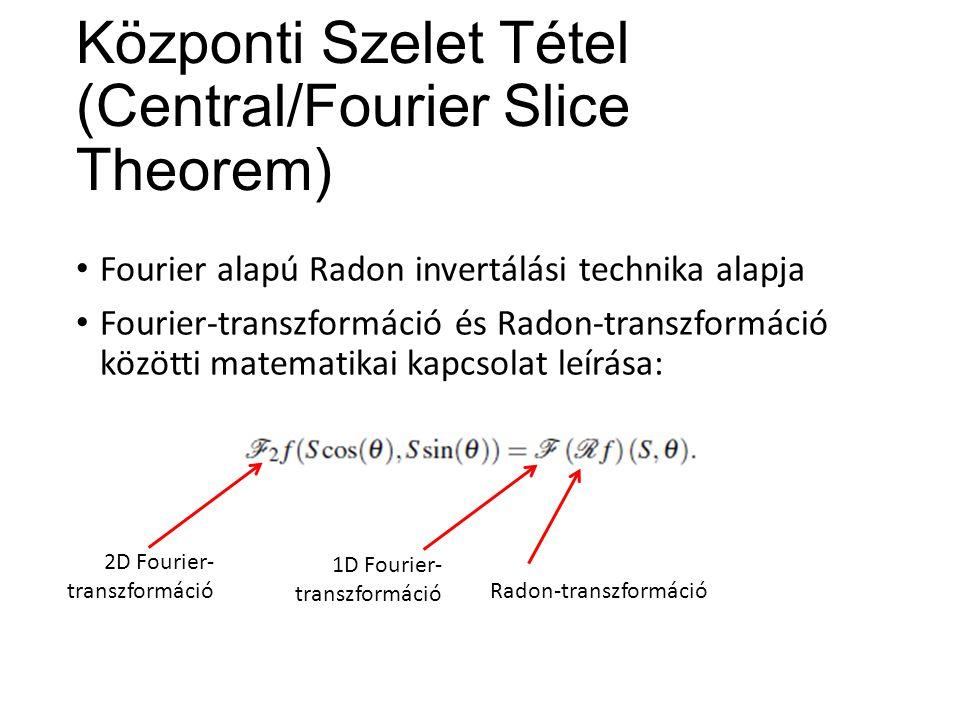 A Radon-transzformált inverze J.Radon eredeti képlete szerint: Visszavetítés (back-projection): (1887-1956) Hilbert-transzformáció