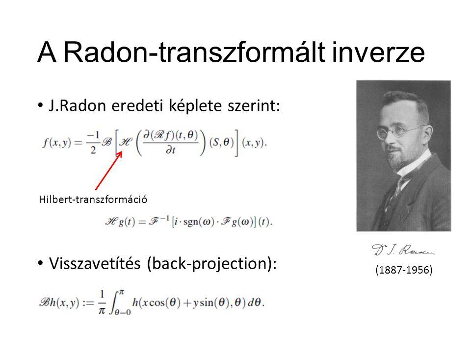 """Szűrt visszavetítés (Filtered Back-Projection) A formula: Gyakorlatban: """"szűrés approximáció"""