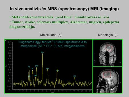 "In vivo analízis és MRS (spectroscopy) MRI (imaging) Metabolit-koncentrációk ""real time"" monitorozása in vivo. Tumor, stroke, sclerosis multiplex, Alzheimer,"