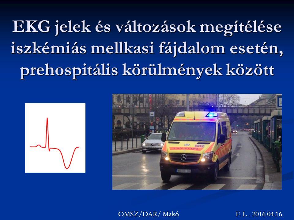 EKG jelek és változások megítélése iszkémiás mellkasi fájdalom esetén, prehospitális körülmények között