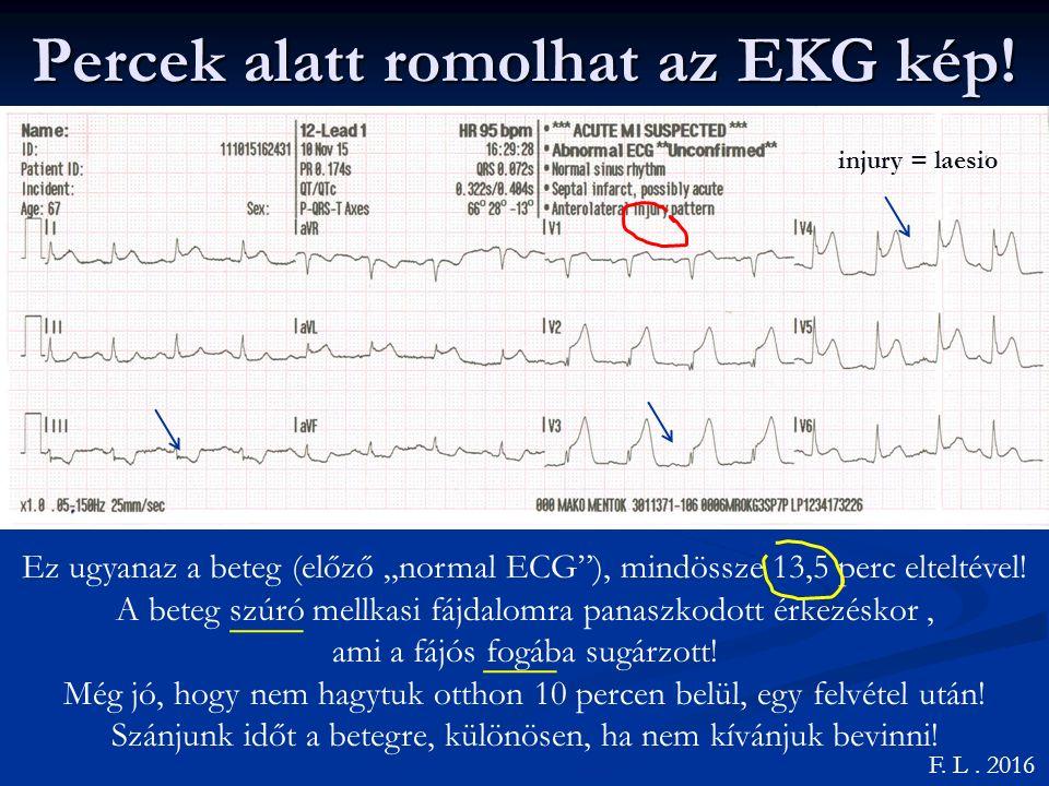 Percek alatt romolhat az EKG kép!