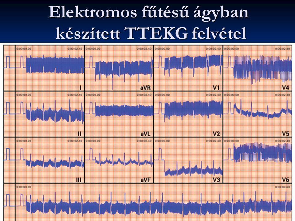 Elektromos fűtésű ágyban készített TTEKG felvétel