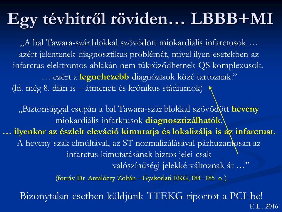 Egy tévhitről röviden… LBBB+MI
