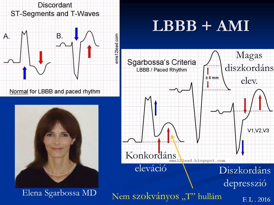 LBBB + AMI Magas diszkordáns elev. Konkordáns eleváció Diszkordáns