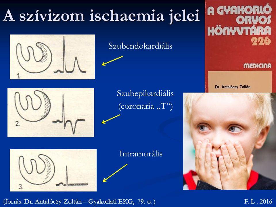 A szívizom ischaemia jelei