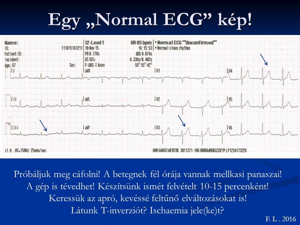 """Egy """"Normal ECG kép!"""