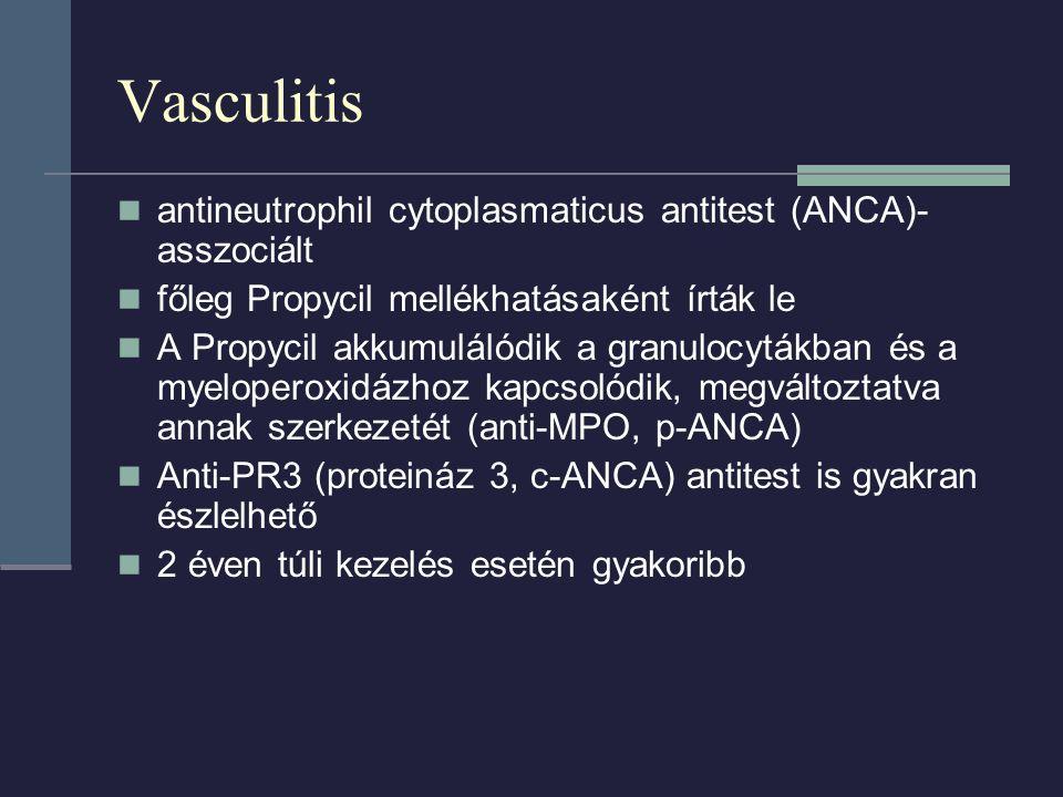 Vasculitis antineutrophil cytoplasmaticus antitest (ANCA)-asszociált