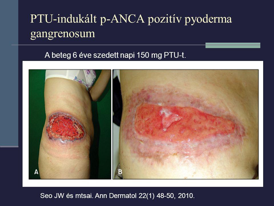 PTU-indukált p-ANCA pozitív pyoderma gangrenosum