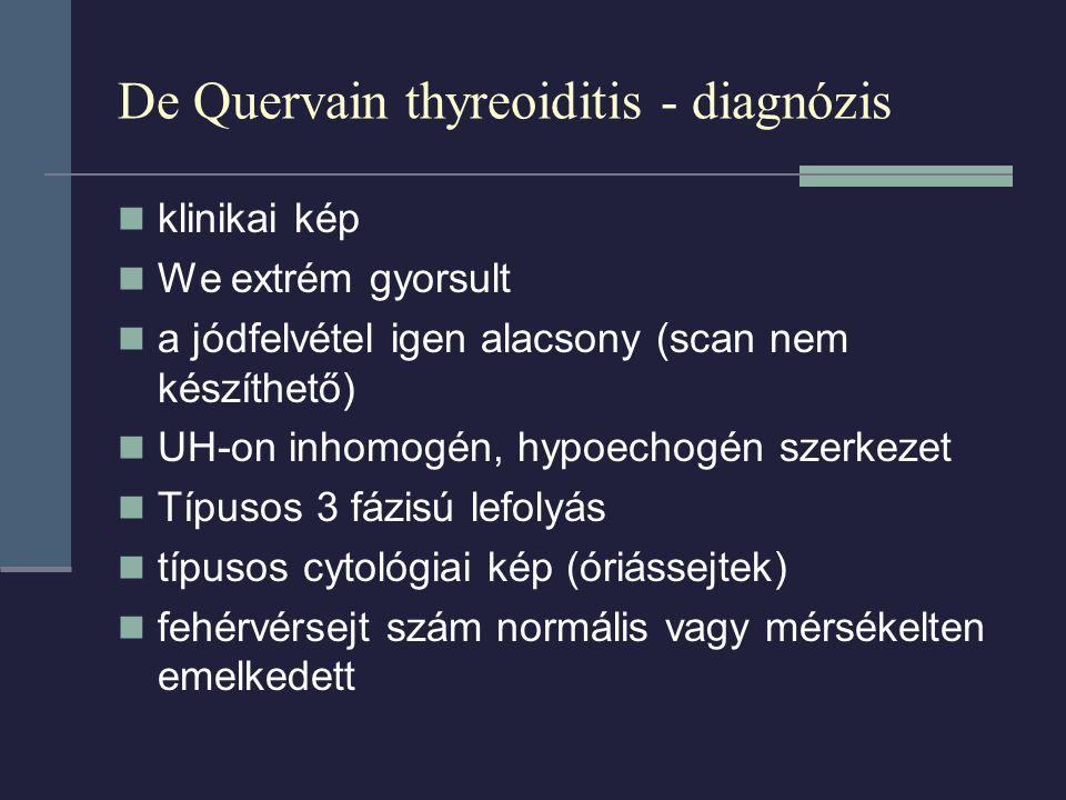 De Quervain thyreoiditis - diagnózis