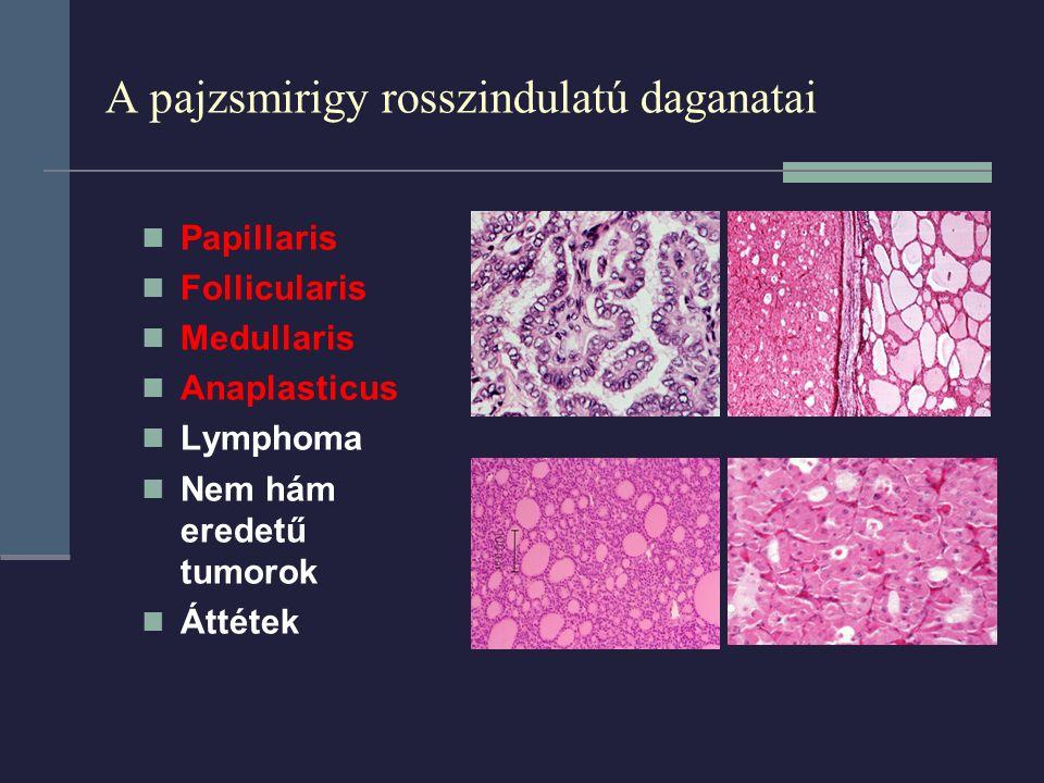 A pajzsmirigy rosszindulatú daganatai