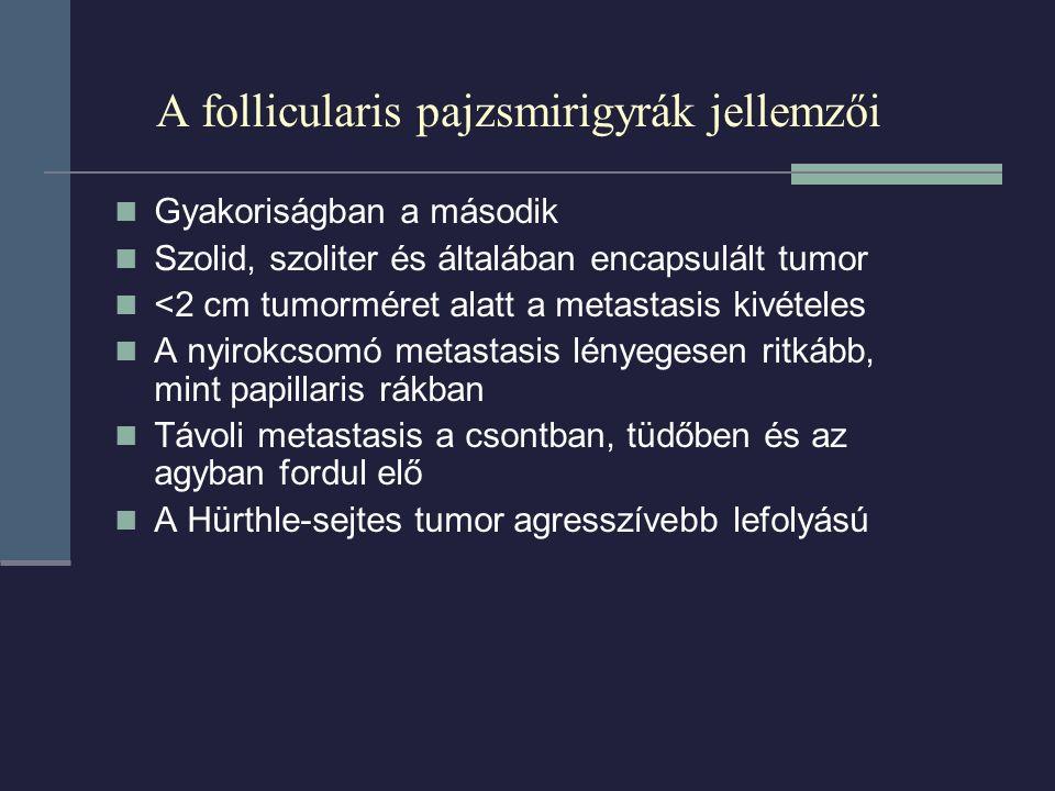 A follicularis pajzsmirigyrák jellemzői