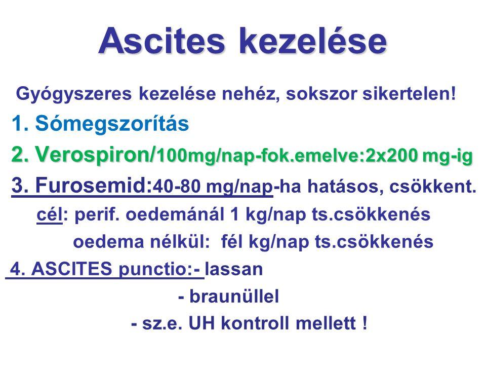 Ascites kezelése 1. Sómegszorítás