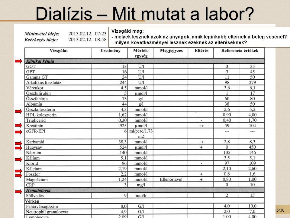 Dialízis – Mit mutat a labor