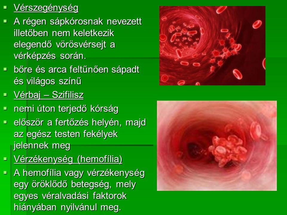 Vérszegénység A régen sápkórosnak nevezett illetőben nem keletkezik elegendő vörösvérsejt a vérképzés során.