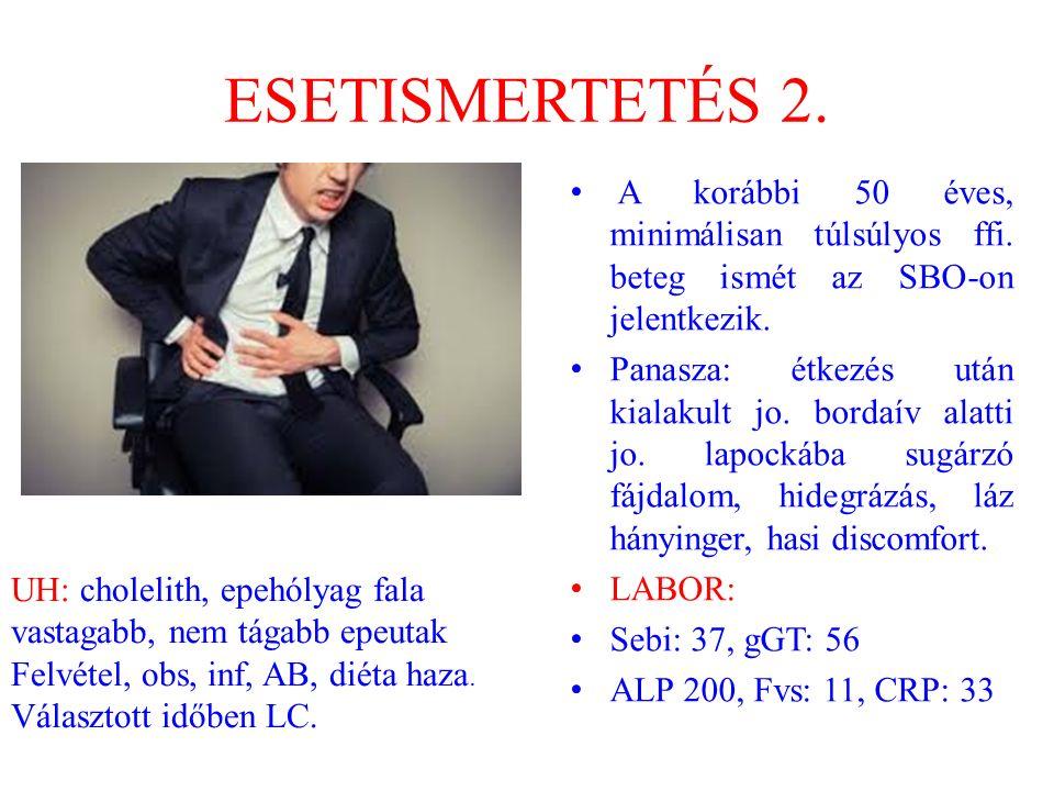 ESETISMERTETÉS 2. A korábbi 50 éves, minimálisan túlsúlyos ffi. beteg ismét az SBO-on jelentkezik.
