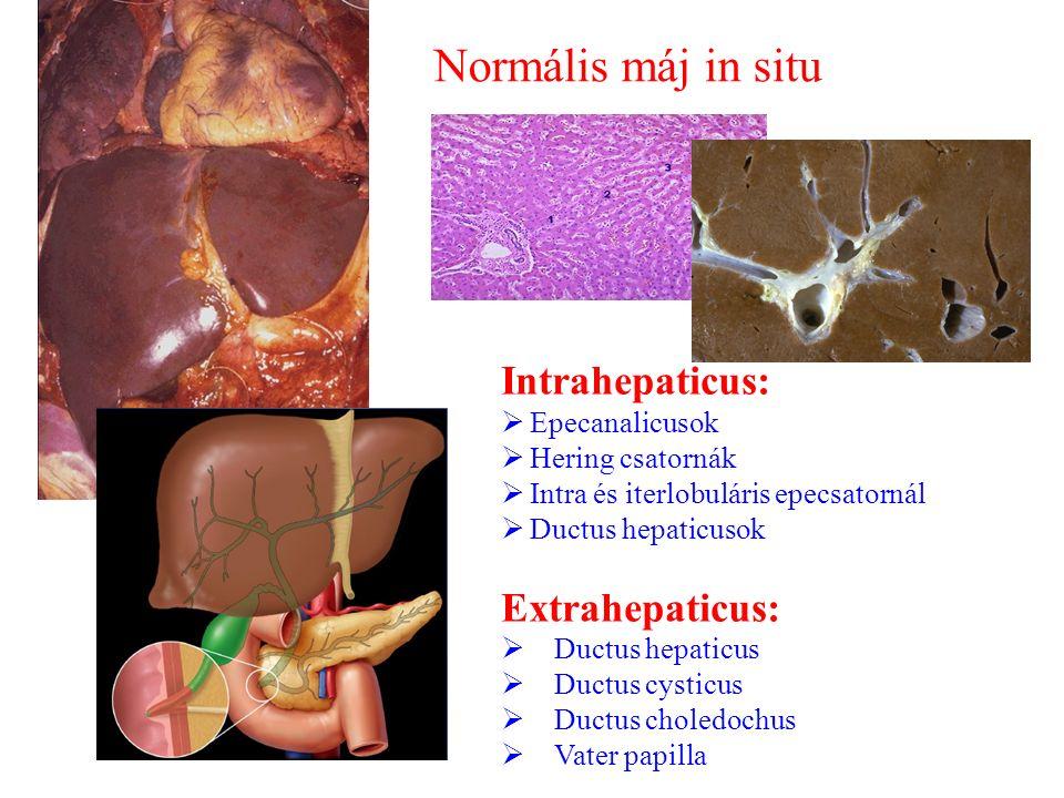 Normális máj in situ Intrahepaticus: Extrahepaticus: Epecanalicusok
