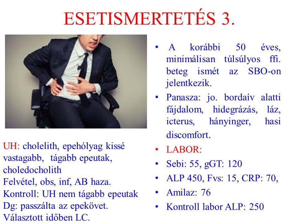 ESETISMERTETÉS 3. A korábbi 50 éves, minimálisan túlsúlyos ffi. beteg ismét az SBO-on jelentkezik.