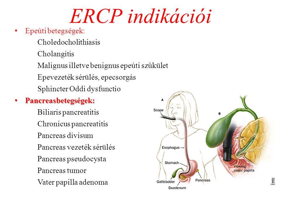 ERCP indikációi Epeúti betegségek: Choledocholithiasis Cholangitis