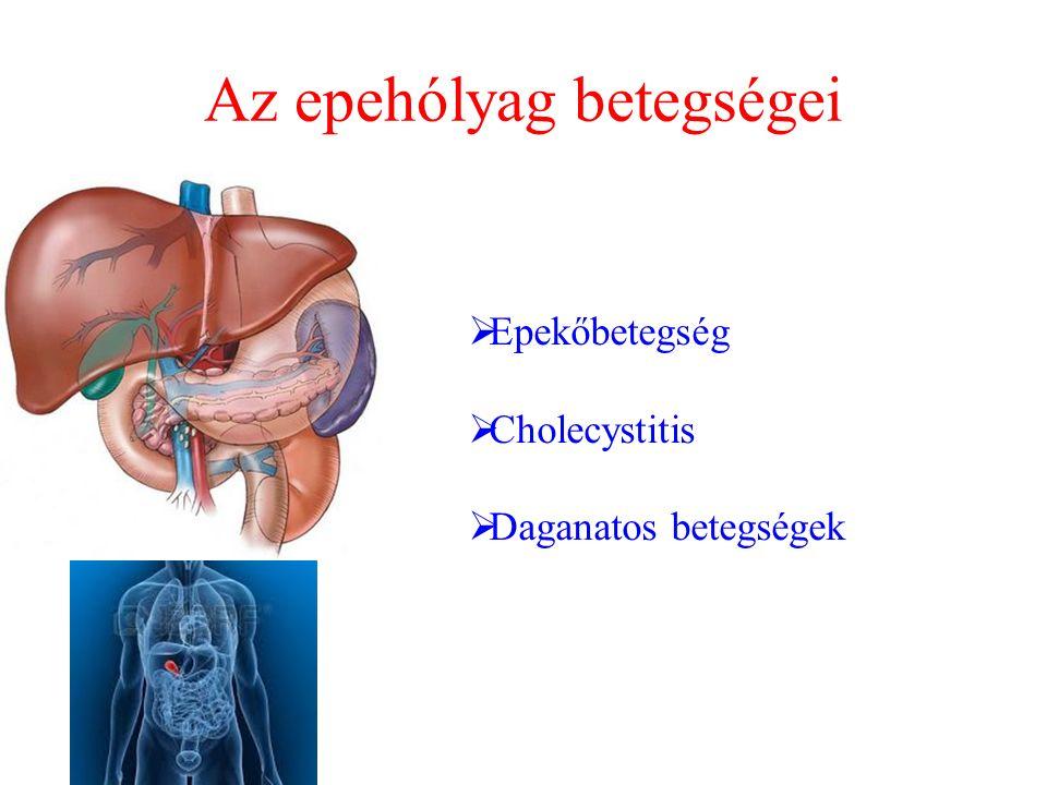 Az epehólyag betegségei
