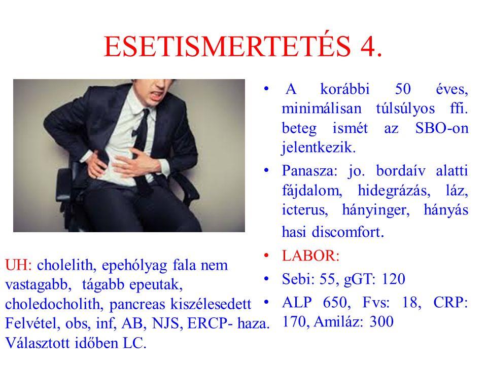 ESETISMERTETÉS 4. A korábbi 50 éves, minimálisan túlsúlyos ffi. beteg ismét az SBO-on jelentkezik.